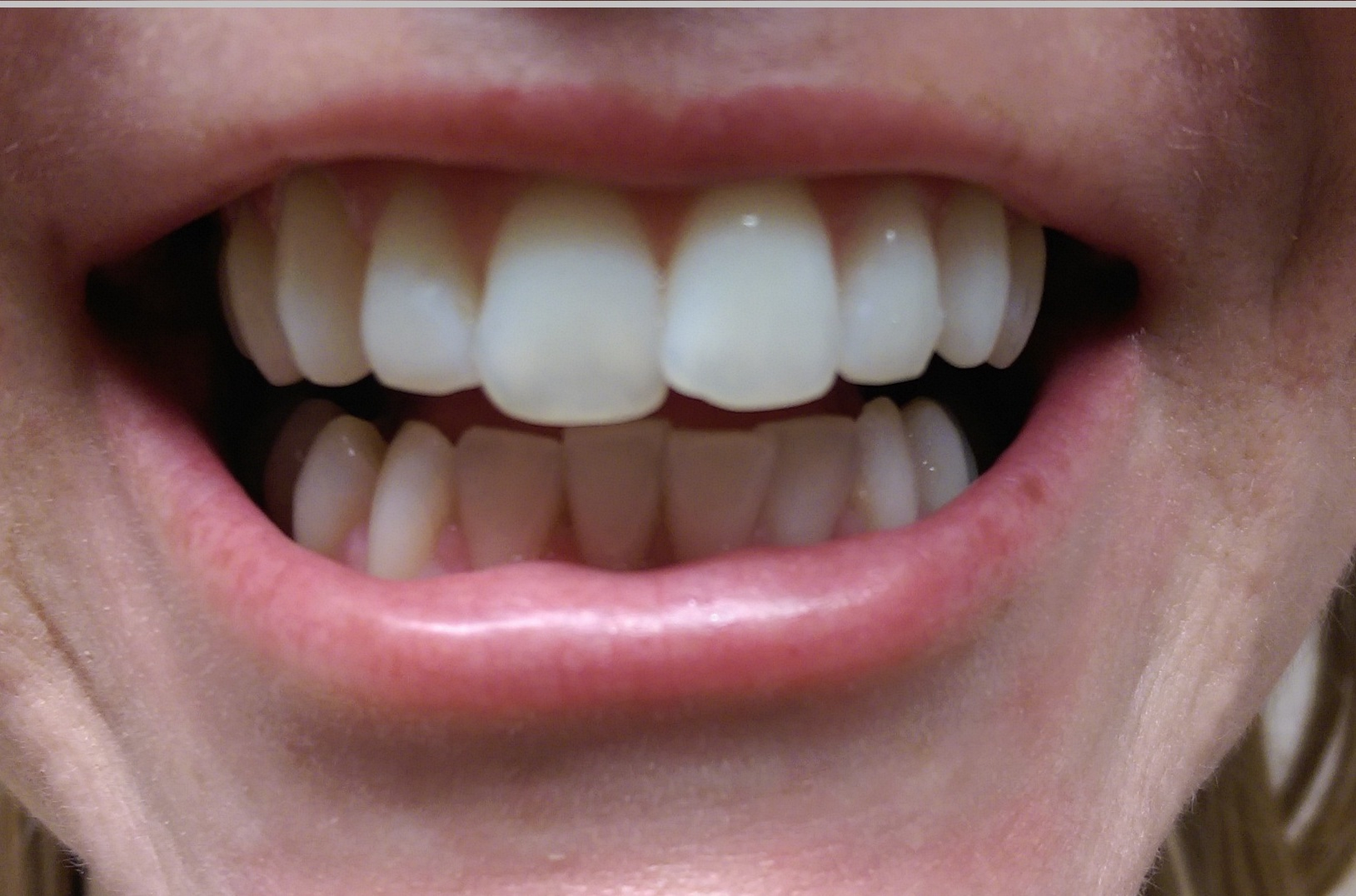 Laser Teeth Whitening - Result - Gold Package